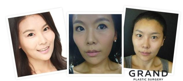 tulang malar Grand Plastic Surgery