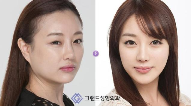 Before After - Han Jeong A