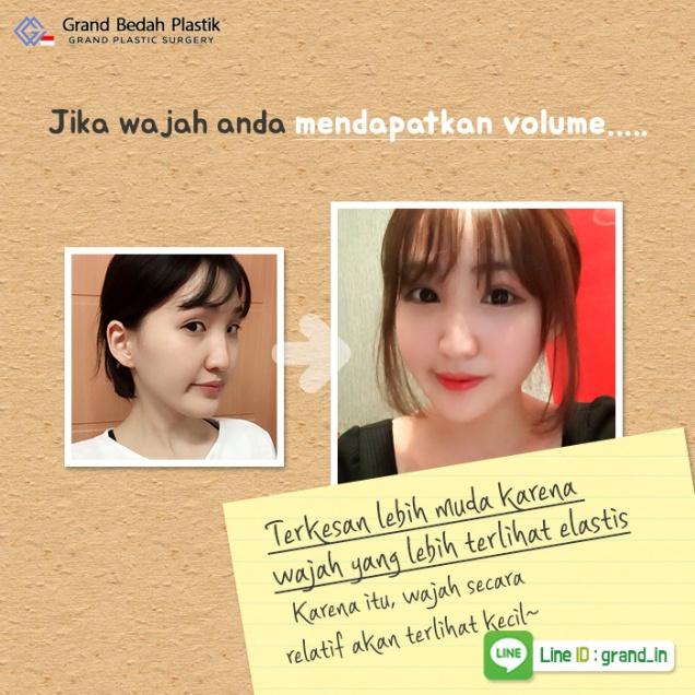 인도네시아_볼륨있는얼굴5