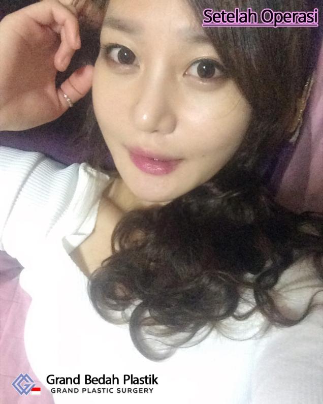 인도네시아_김효은(양악)_수술후12개월
