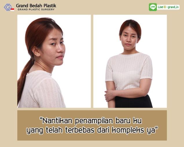 인도네시아-아이린-수술전 스토리-5