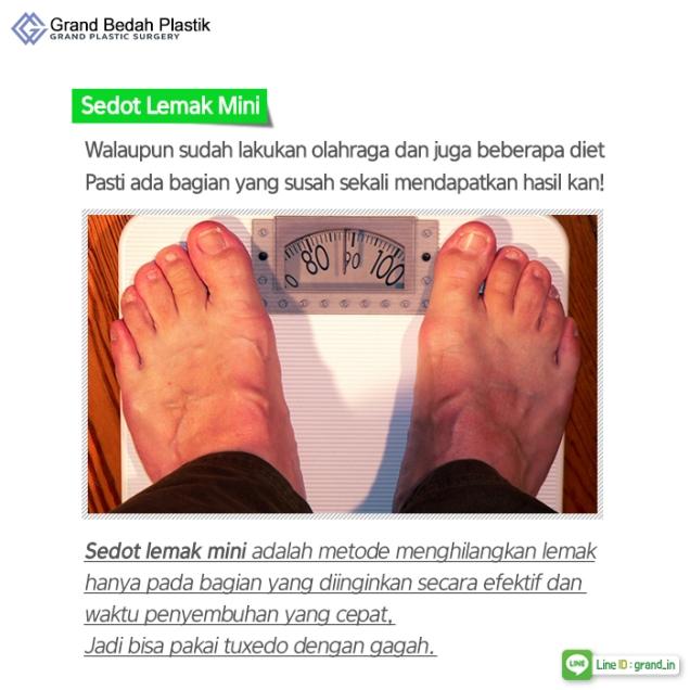 인도네시아_결혼전남자성형4