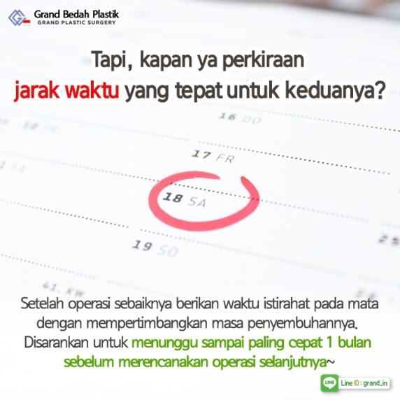 인도네시아_쌍커풀과시력5